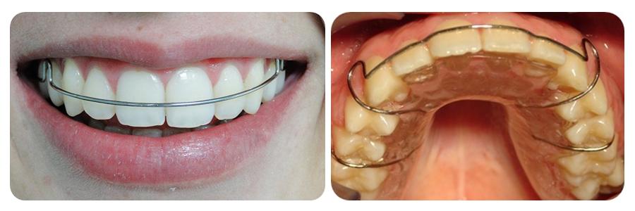 Colocar aparelho nos dentes online dating 1